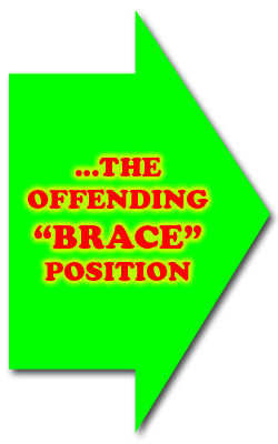 The Offending Brace Position